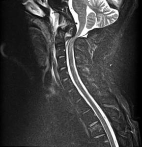 Магнитно- резонансная томография шейного отдела позвоночника при поступлении, видна выраженная компрессия спинного мозга